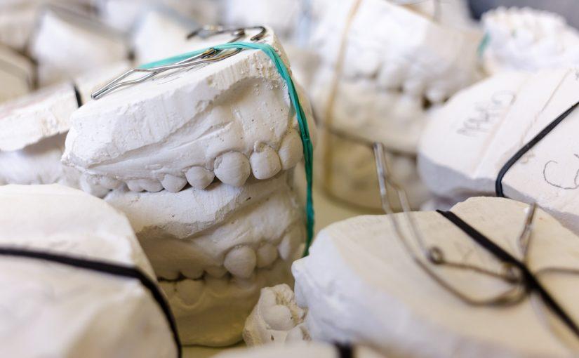 Złe podejście żywienia się to większe niedostatki w jamie ustnej oraz także ich brak